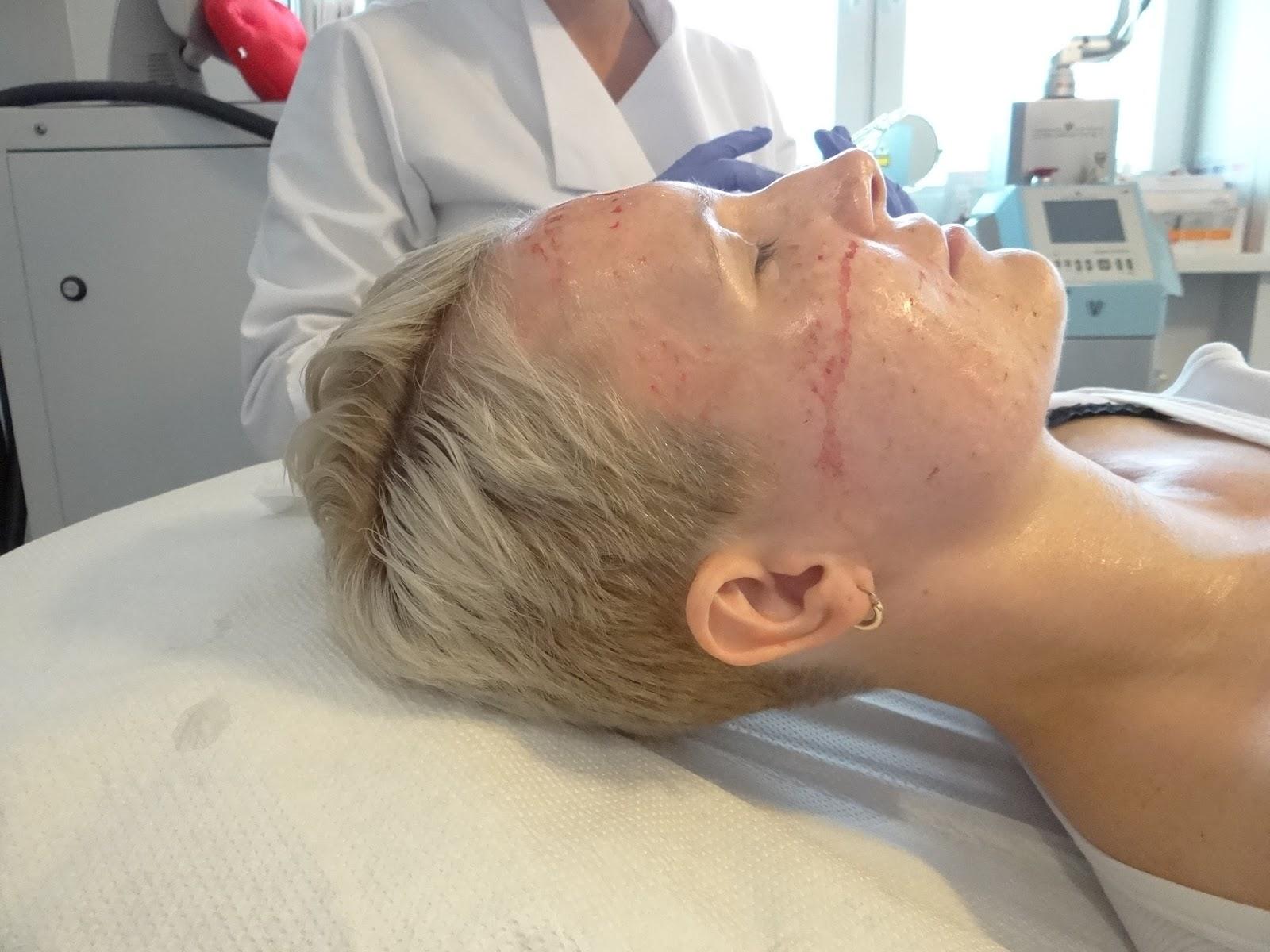 Mezoterapia igłowa Warszawa (5)